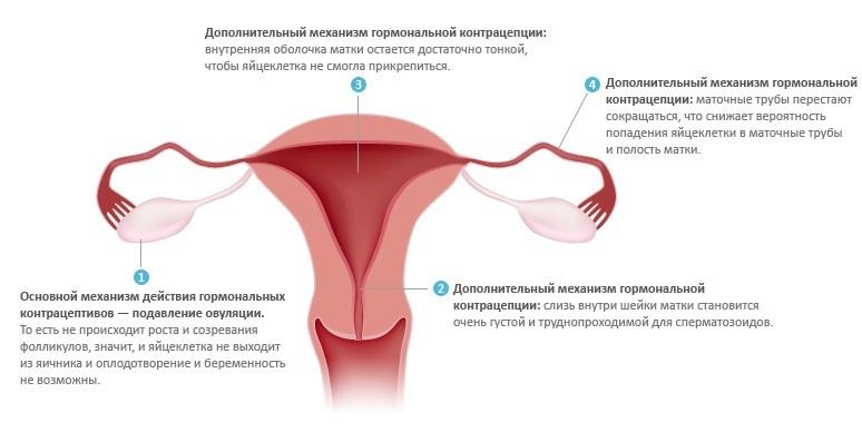 vliyanie-na-plod-vaginalnogo-koltsa